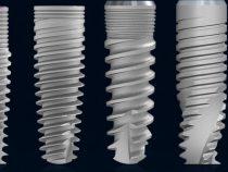 Ultimele inovații tehnologice în materie de implanturi dentare
